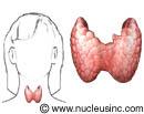 Ubicación de la glándula tiroidea en el organismo y un primer plano de la glándula tiroidea