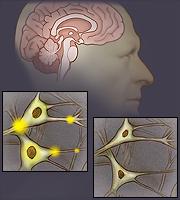 El cerebro y las células nerviosas