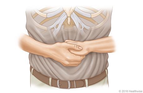 Imagen A: Vista frontal de la posición de las manos para la maniobra de Heimlich en un adulto o un niño