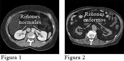Tomografía computarizada que muestra riñones normales y riñones dañados