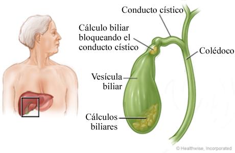 Vesícula biliar y cálculos biliares
