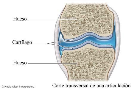 Imagen de un cartílago (corte transversal de una articulación)