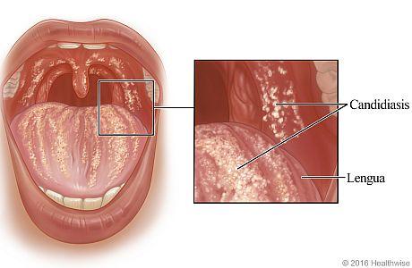 Candidiasis oral, con un primer plano de candidiasis en la lengua y en la parte interior de la mejilla