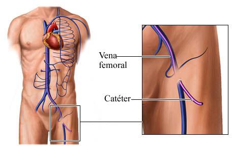 Cómo se coloca un catéter en la vena femoral